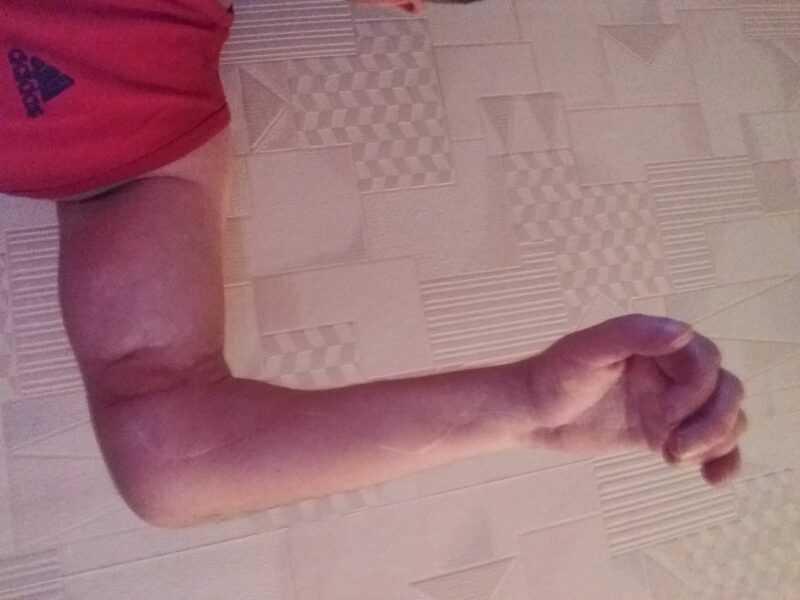 Поврежденная рука