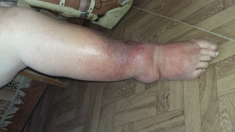 нога которую нужно лечить