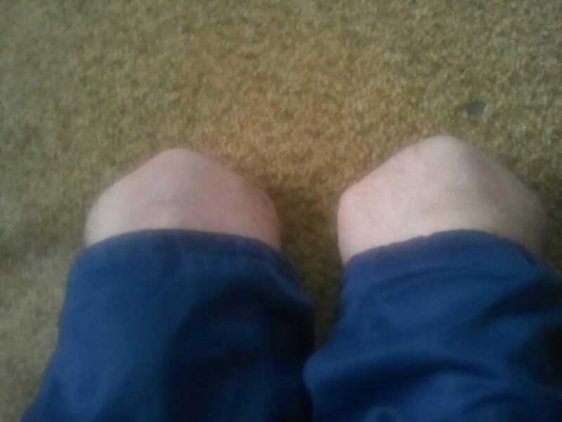 Нет обеих ног я инвалид 1 группы