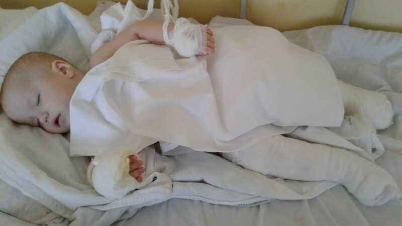 После операций