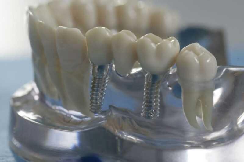налоговый вычет за протезирование зубов