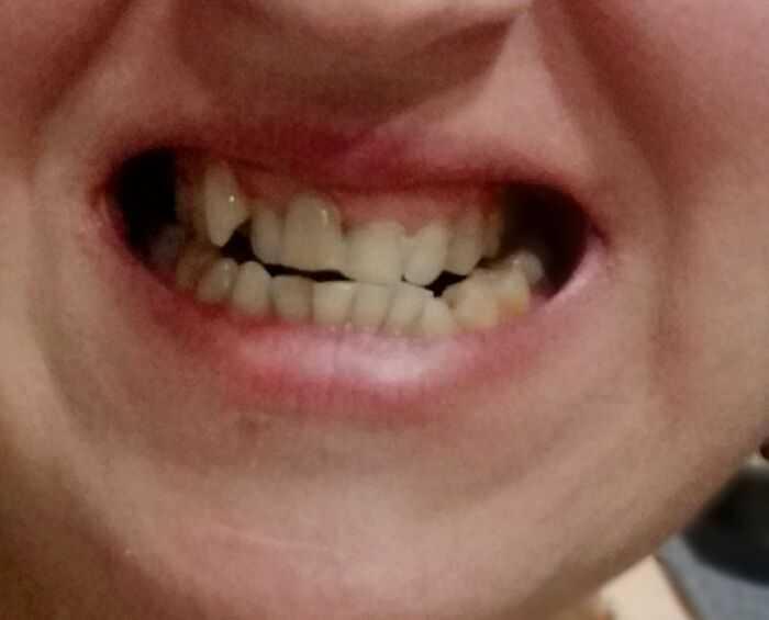 Моя улыбка